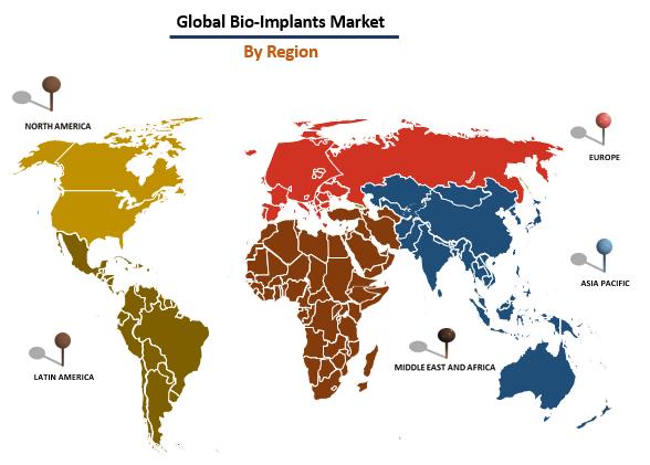 Global Bio-Implant Market By Region