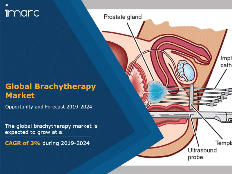 Global Brachytherapy Market Report