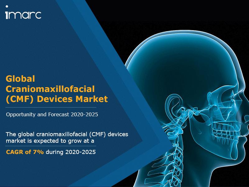 Global Craniomaxillofacial Devices Market