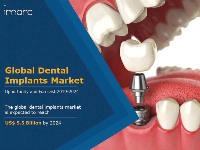 Global Dental Implants Market